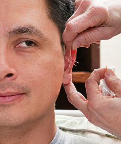 Acupuncture For Ringing in the Ears